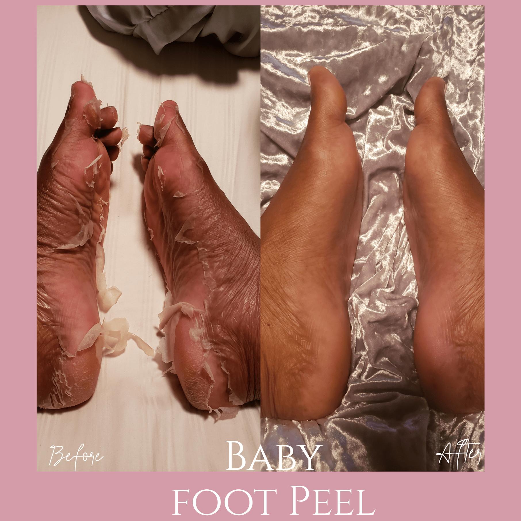 Baby Foot Peel